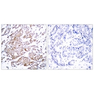 Rabbit anti-Myc (Phospho-Thr58) polyclonal antibody