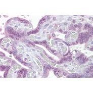 Rabbit anti-IRF6 polyclonal antibody - middle region