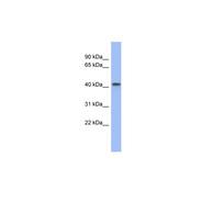 Rabbit anti-FIZ1 polyclonal antibody - middle region