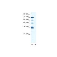 Rabbit anti-GLIS2 polyclonal antibody - N-terminal region