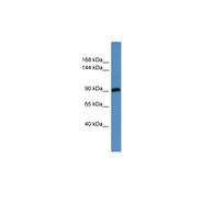 Rabbit anti-Hps3 polyclonal antibody - N-terminal region