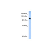Rabbit anti-SMARCA5 polyclonal antibody - N-terminal region