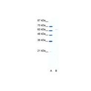 Rabbit anti-FOXN1 polyclonal antibody - N-terminal region