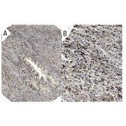 c-Myc Antibody (A-14) HRP
