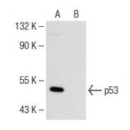 p53 Antibody (FL-393) FITC